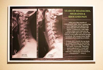 Chiropractic Columbus OH What To Expect Patient Education
